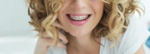 神栖の矯正歯科 矯正装置を装着している女性